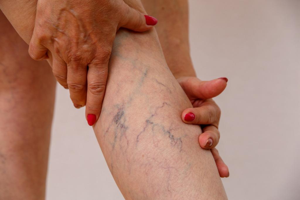Are Varicose Veins Permanent?